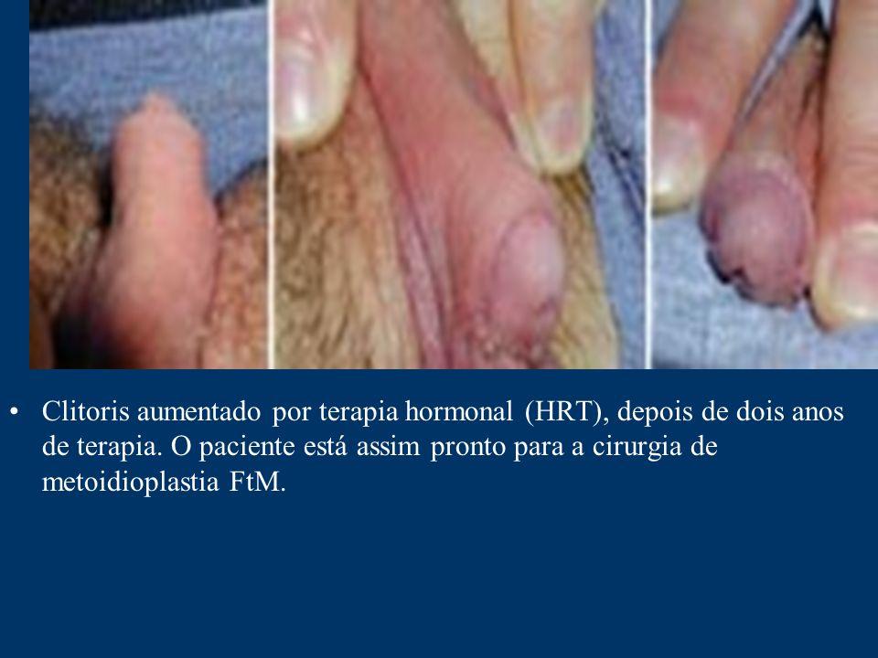 Clitoris aumentado por terapia hormonal (HRT), depois de dois anos de terapia.