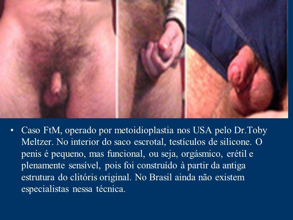 Caso FtM, operado por metoidioplastia nos USA pelo Dr. Toby Meltzer