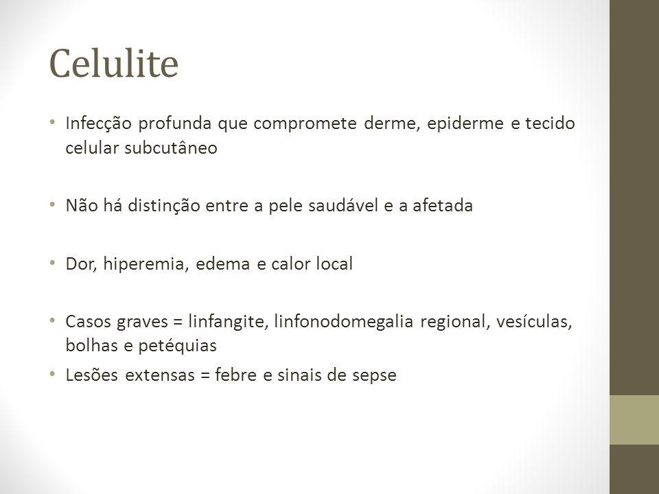 Celulite Infecção profunda que compromete derme, epiderme e tecido celular subcutâneo. Não há distinção entre a pele saudável e a afetada.