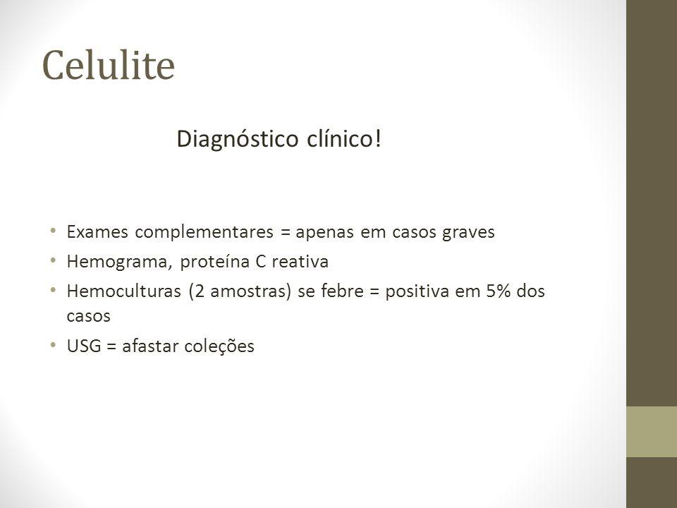 Celulite Diagnóstico clínico!