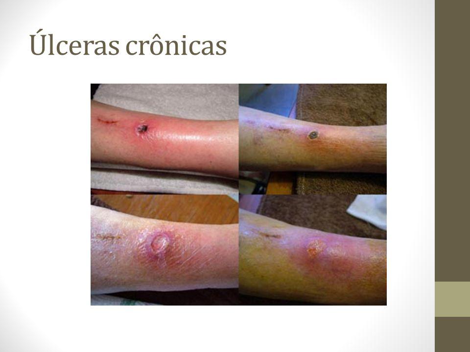 Úlceras crônicas