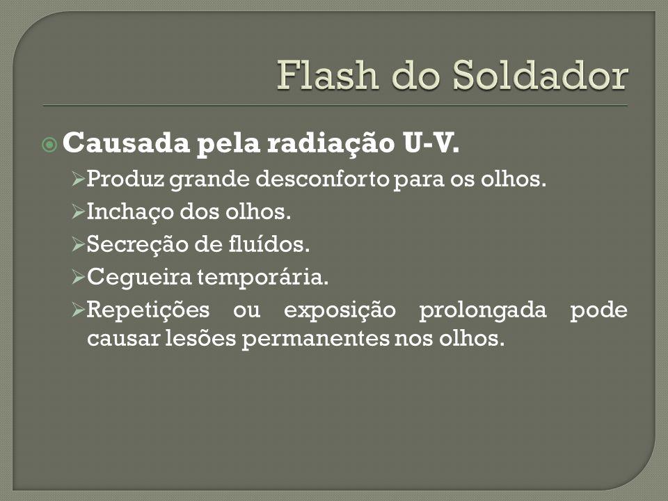 Flash do Soldador Causada pela radiação U-V.