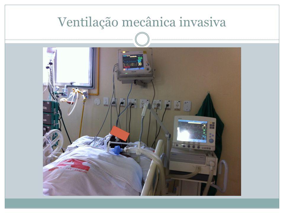 Ventilação mecânica invasiva