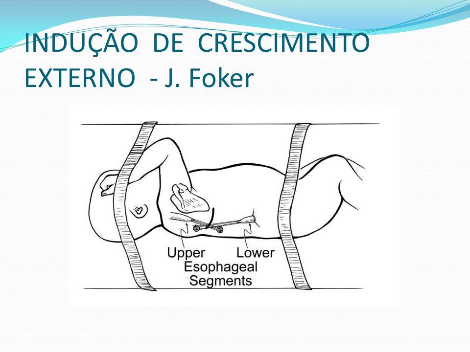 INDUÇÃO DE CRESCIMENTO EXTERNO - J. Foker