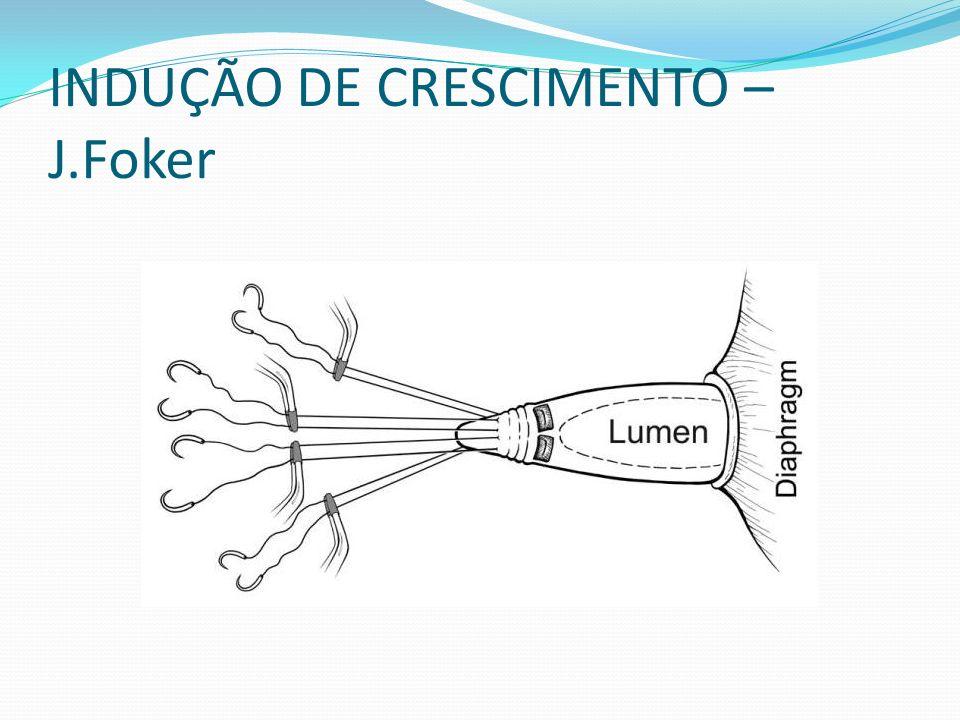 INDUÇÃO DE CRESCIMENTO – J.Foker