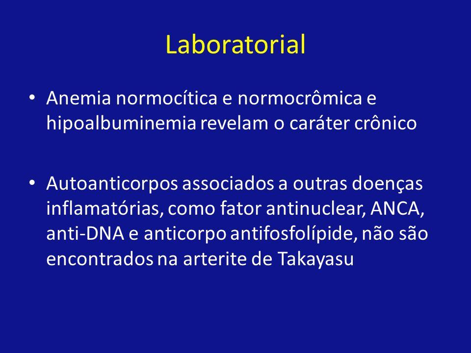 Laboratorial Anemia normocítica e normocrômica e hipoalbuminemia revelam o caráter crônico.