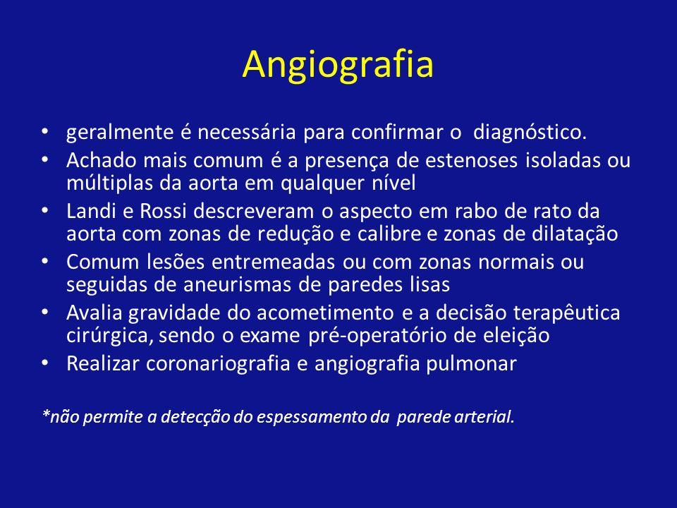 Angiografia geralmente é necessária para confirmar o diagnóstico.