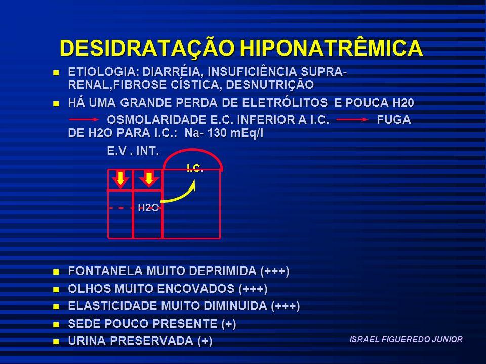 DESIDRATAÇÃO HIPONATRÊMICA