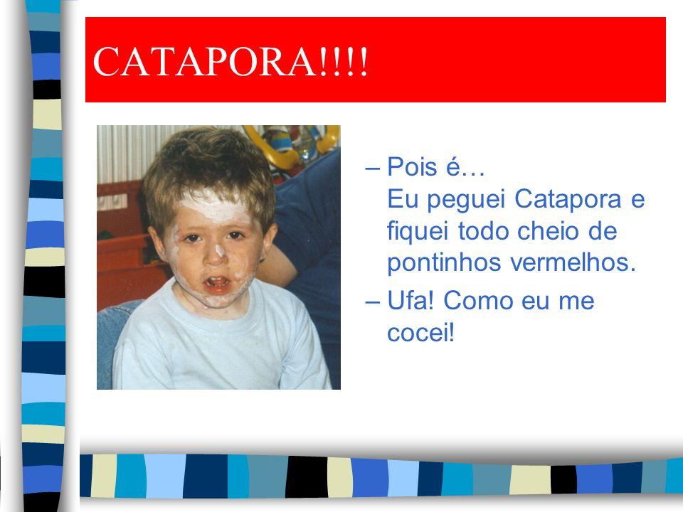CATAPORA!!!. Pois é… Eu peguei Catapora e fiquei todo cheio de pontinhos vermelhos.