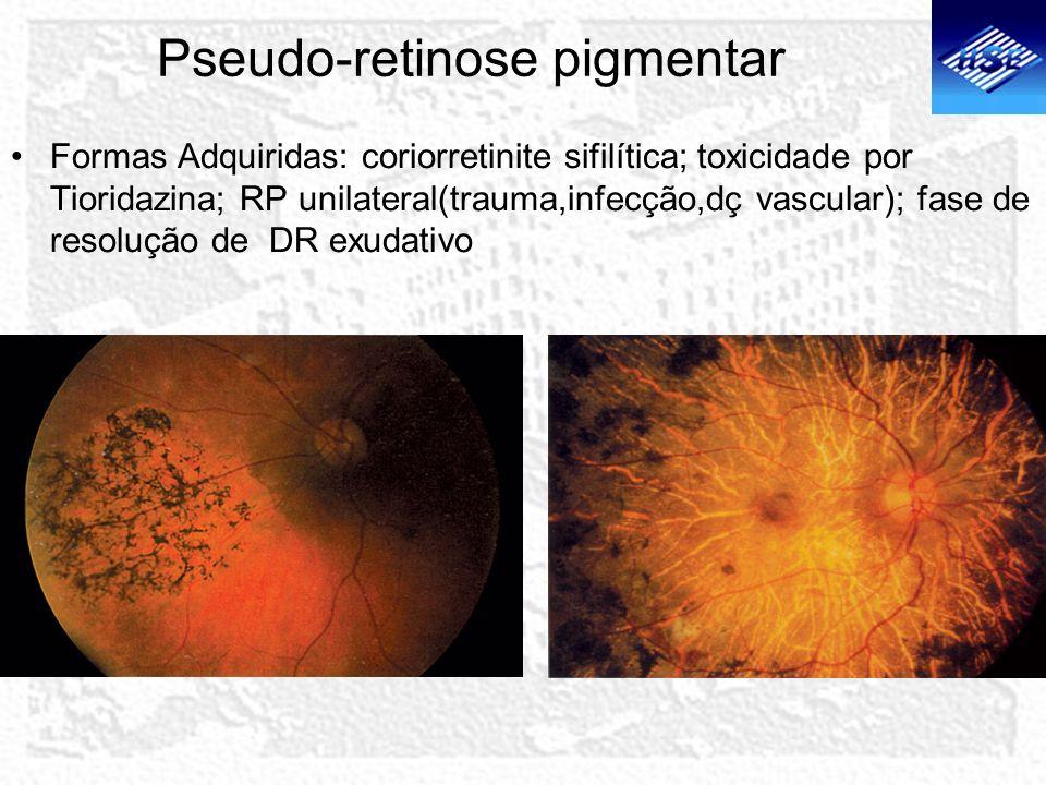 Pseudo-retinose pigmentar
