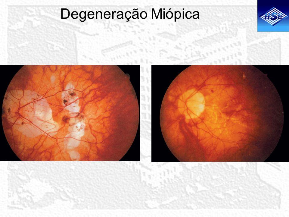 Degeneração Miópica