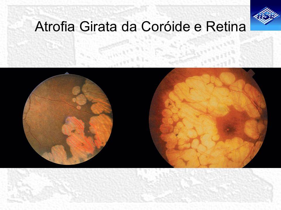 Atrofia Girata da Coróide e Retina