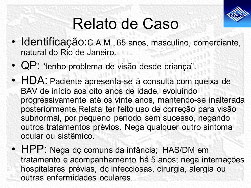 Relato de Caso Identificação:C.A.M., 65 anos, masculino, comerciante, natural do Rio de Janeiro. QP: tenho problema de visão desde criança .