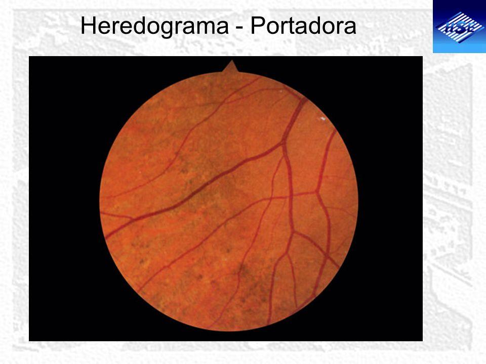 Heredograma - Portadora