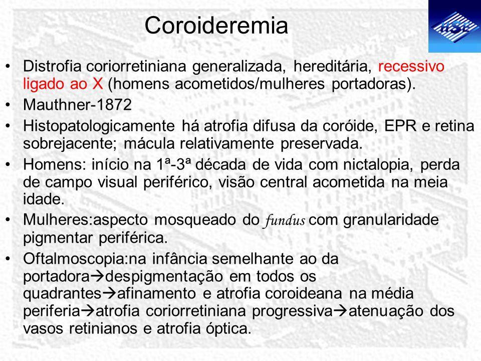 Coroideremia Distrofia coriorretiniana generalizada, hereditária, recessivo ligado ao X (homens acometidos/mulheres portadoras).