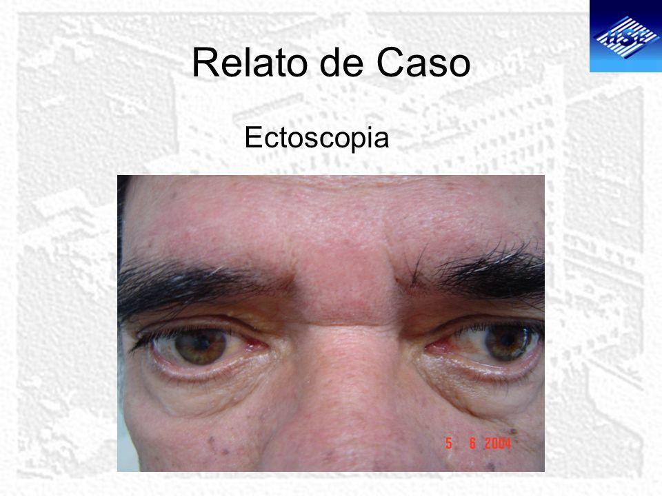 Relato de Caso Ectoscopia