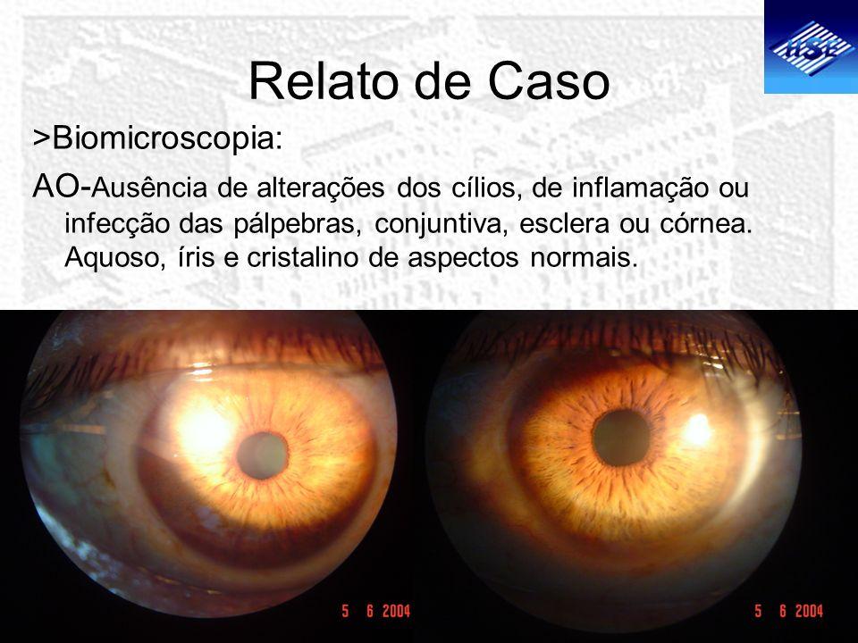 Relato de Caso >Biomicroscopia: