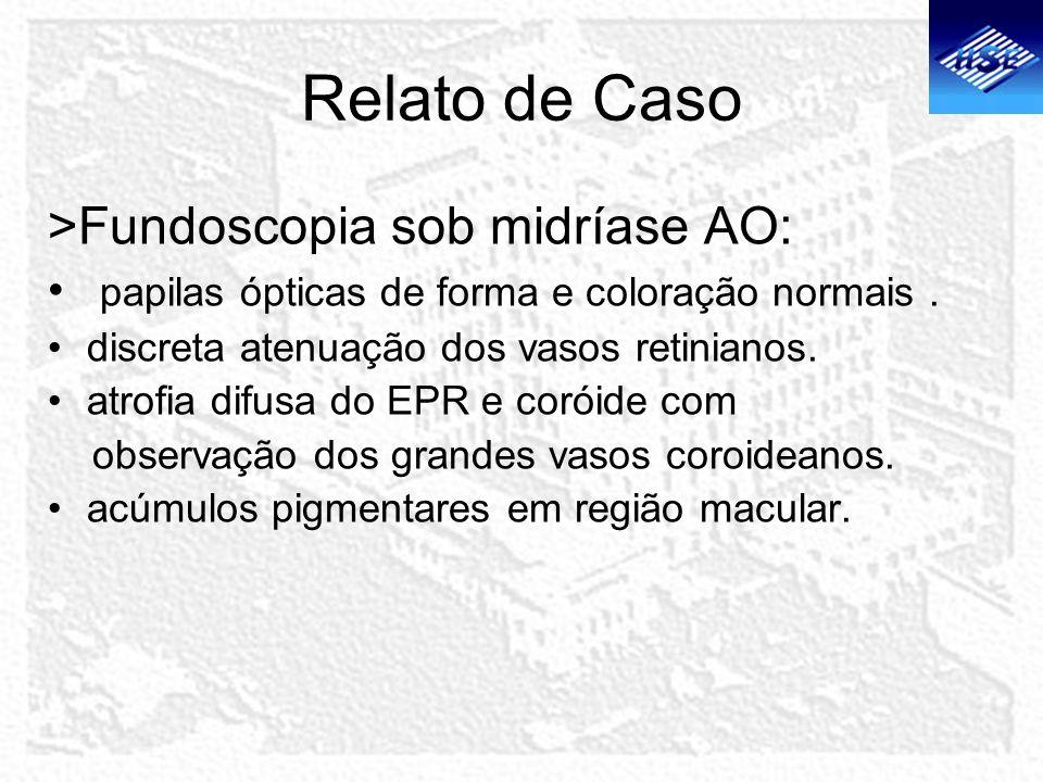 Relato de Caso >Fundoscopia sob midríase AO: