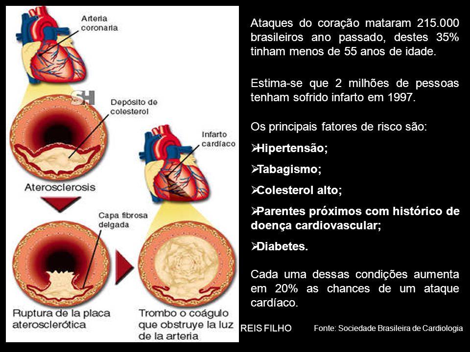 Estima-se que 2 milhões de pessoas tenham sofrido infarto em 1997.