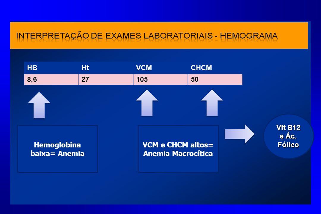 Hemoglobina baixa= Anemia VCM e CHCM altos= Anemia Macrocítica