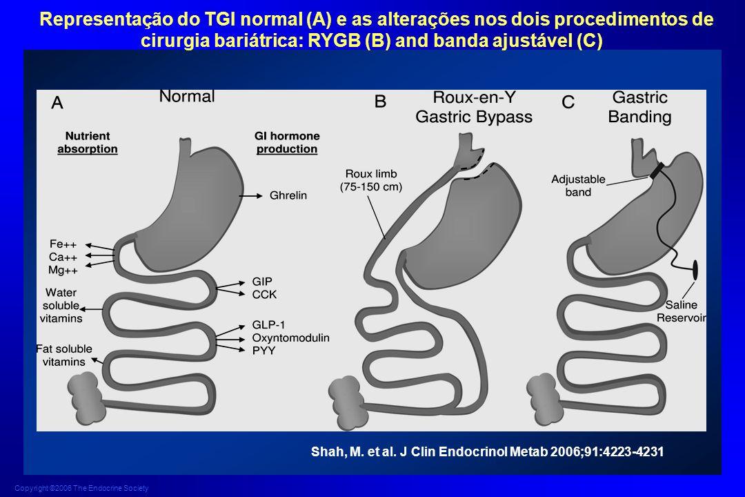 Representação do TGI normal (A) e as alterações nos dois procedimentos de cirurgia bariátrica: RYGB (B) and banda ajustável (C)