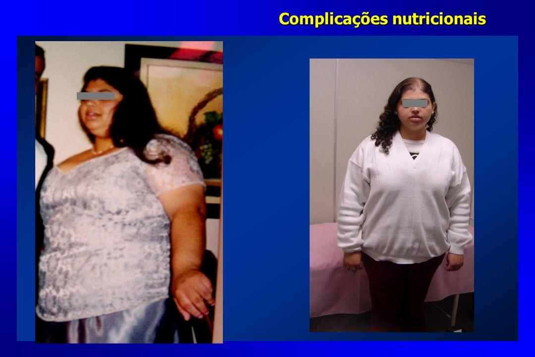 Complicações nutricionais