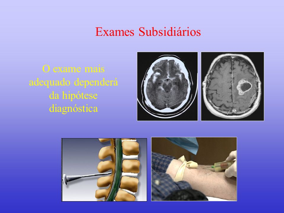 O exame mais adequado dependerá da hipótese diagnóstica