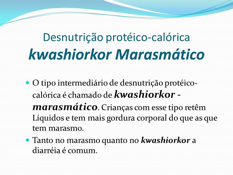 Desnutrição protéico-calórica kwashiorkor Marasmático