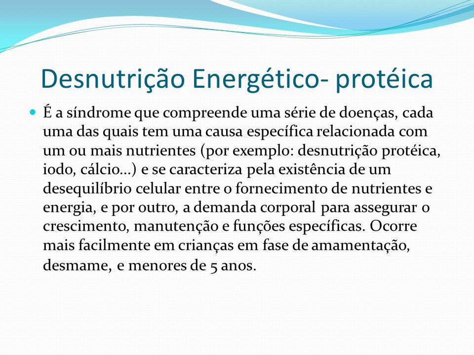 Desnutrição Energético- protéica