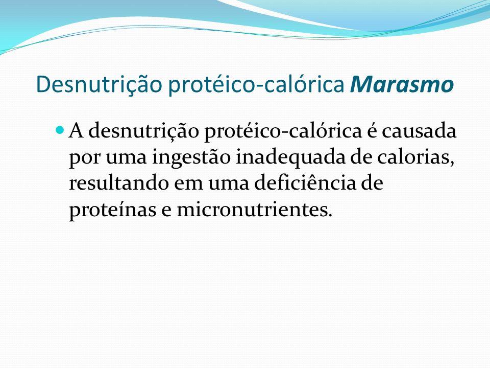 Desnutrição protéico-calórica Marasmo
