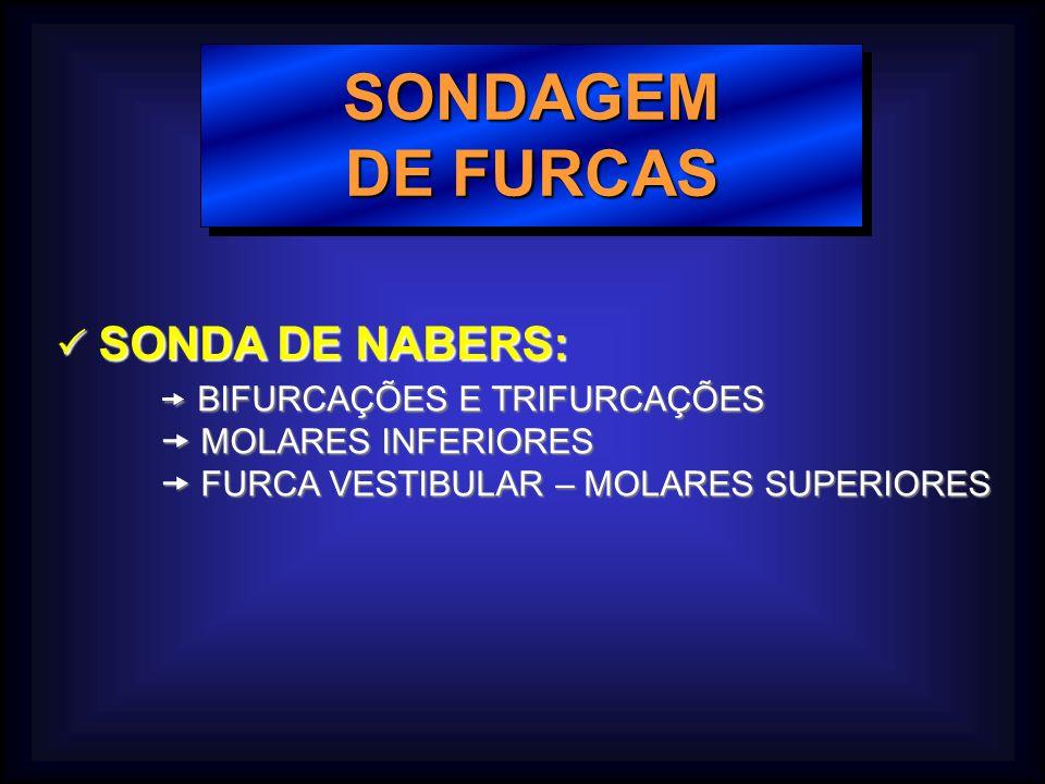 SONDAGEM DE FURCAS  SONDA DE NABERS:  BIFURCAÇÕES E TRIFURCAÇÕES