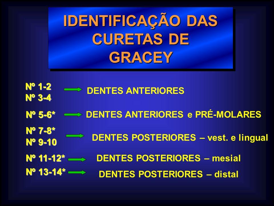 IDENTIFICAÇÃO DAS CURETAS DE GRACEY