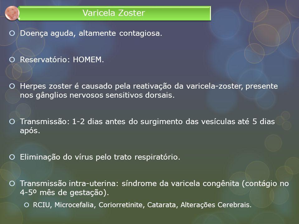 Varicela Zoster Doença aguda, altamente contagiosa.