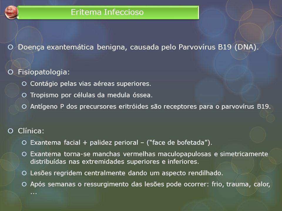 Eritema Infeccioso Doença exantemática benigna, causada pelo Parvovírus B19 (DNA). Fisiopatologia: