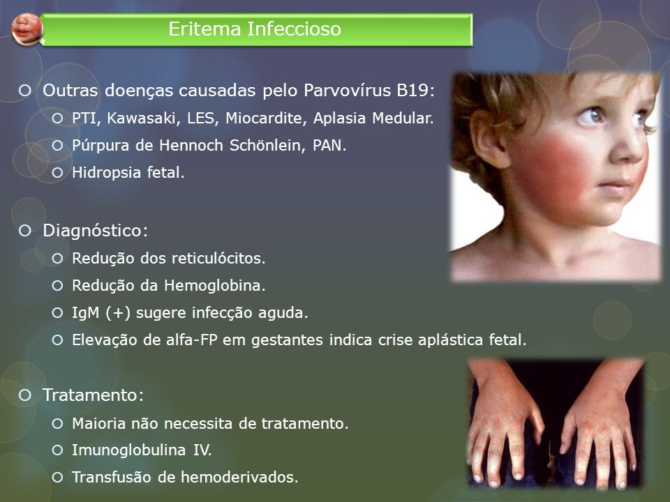 Eritema Infeccioso Outras doenças causadas pelo Parvovírus B19: