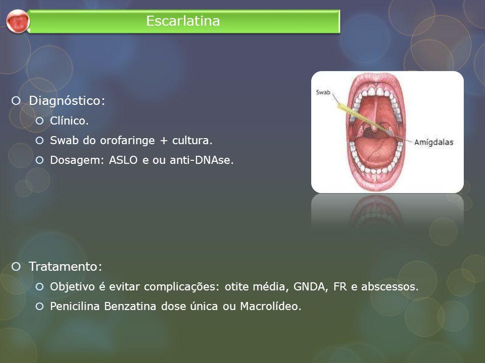 Escarlatina Diagnóstico: Tratamento: Clínico.
