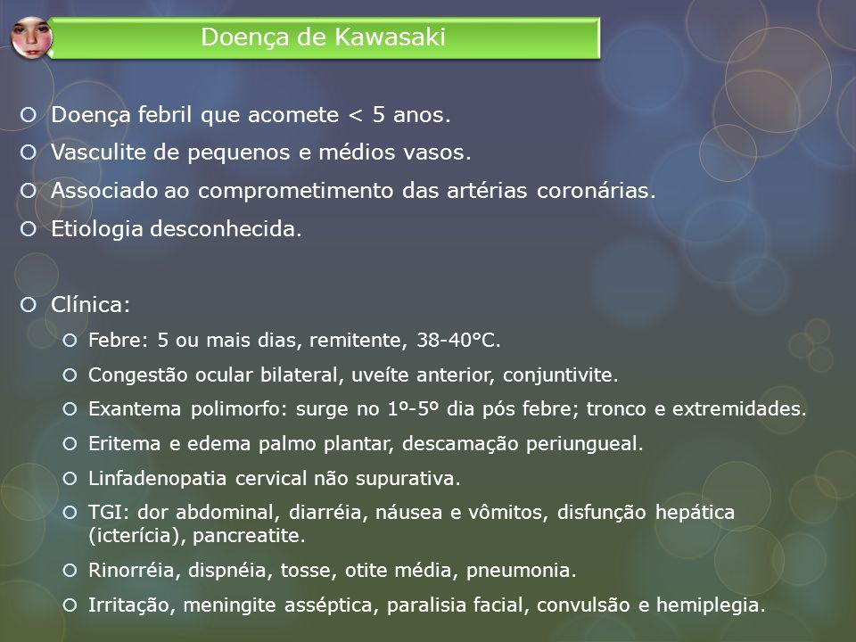 Doença de Kawasaki Doença febril que acomete < 5 anos.