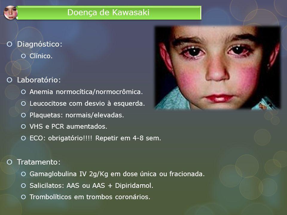 Doença de Kawasaki Diagnóstico: Laboratório: Tratamento: Clínico.