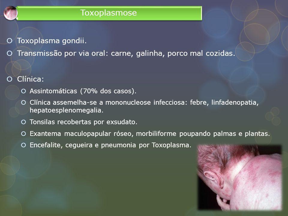 Toxoplasmose Toxoplasma gondii.