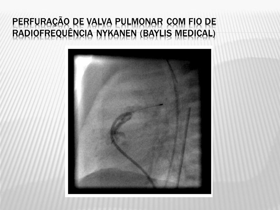 Perfuração de valva pulmonar com fio de radiofrequência Nykanen (Baylis Medical)