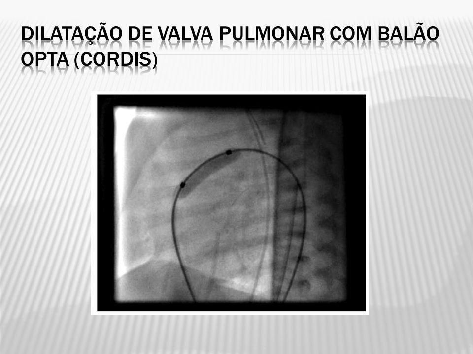 Dilatação de valva pulmonar com balão Opta (Cordis)