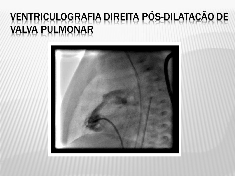 Ventriculografia direita pós-dilatação de valva pulmonar