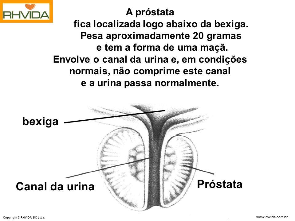 bexiga Próstata Canal da urina A próstata