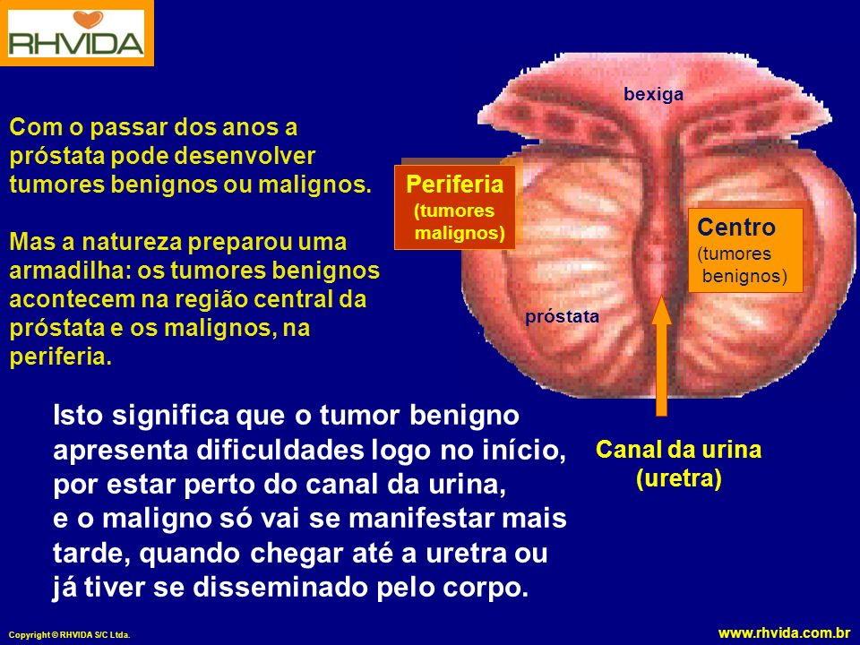 Isto significa que o tumor benigno