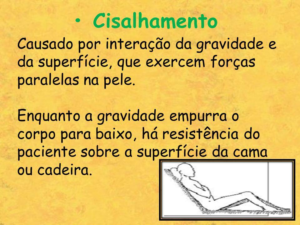• CisalhamentoCausado por interação da gravidade e da superfície, que exercem forças paralelas na pele.