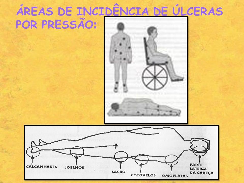 ÁREAS DE INCIDÊNCIA DE ÚLCERAS POR PRESSÃO: