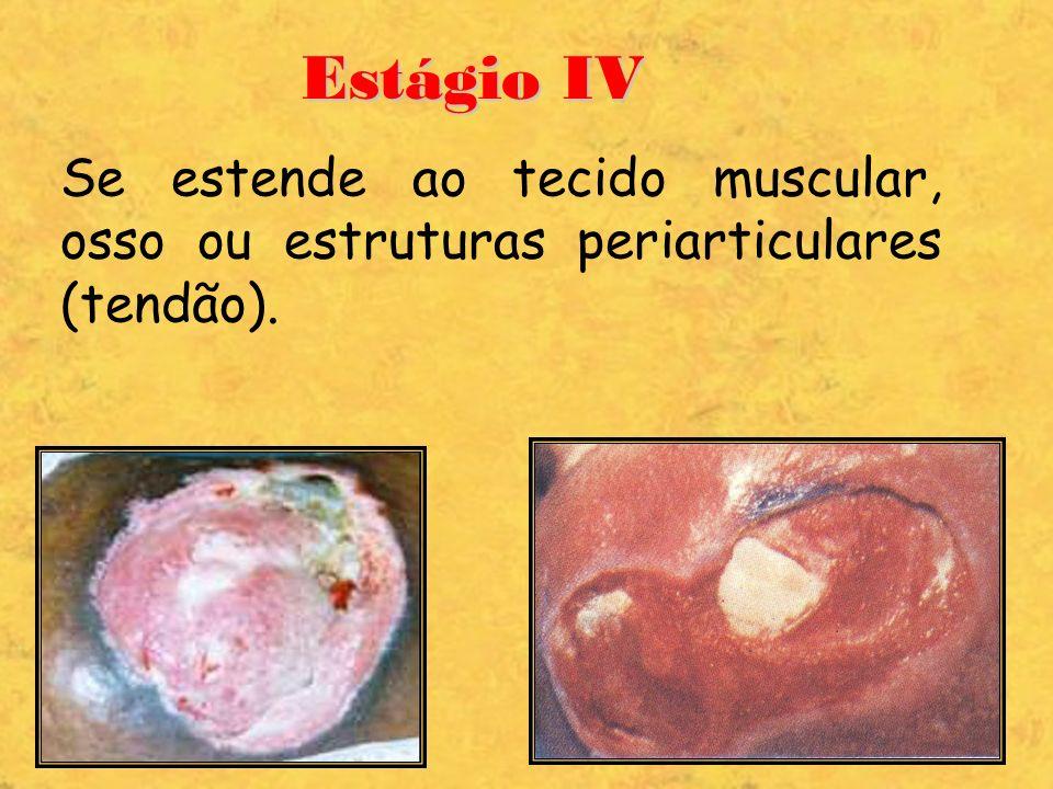 Estágio IV Se estende ao tecido muscular, osso ou estruturas periarticulares (tendão).