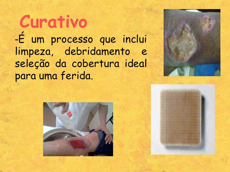 Curativo É um processo que inclui limpeza, debridamento e seleção da cobertura ideal para uma ferida.