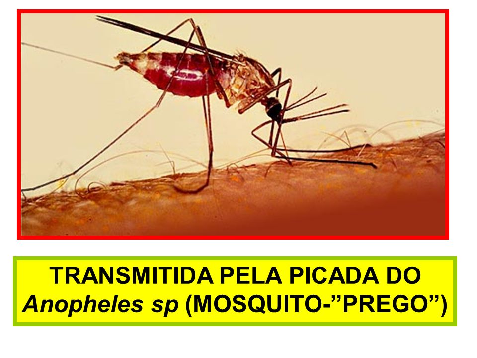 TRANSMITIDA PELA PICADA DO Anopheles sp (MOSQUITO- PREGO )