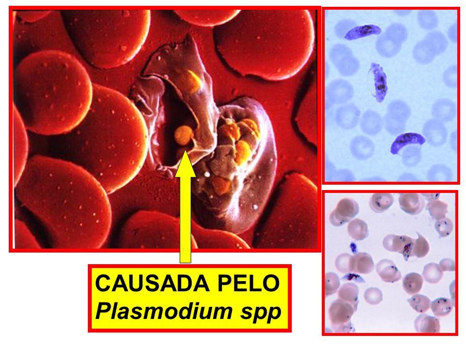 CAUSADA PELO Plasmodium spp